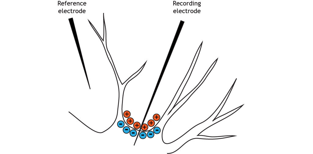 Illustrated section of a neuron cell body shows negatively charged intracellular solution.
