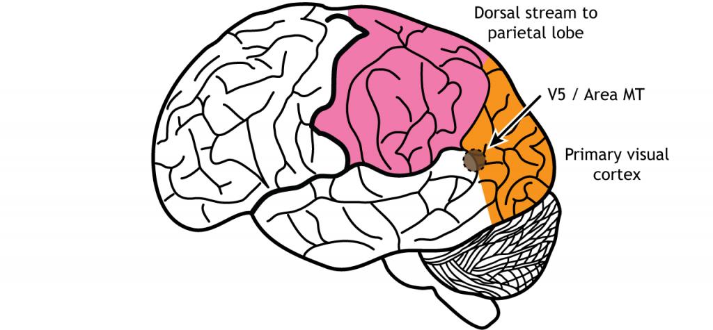 Illustration of the brain showing area MT near the occipital lobe, temporal lobe, parietal lobe junction. Details in caption.