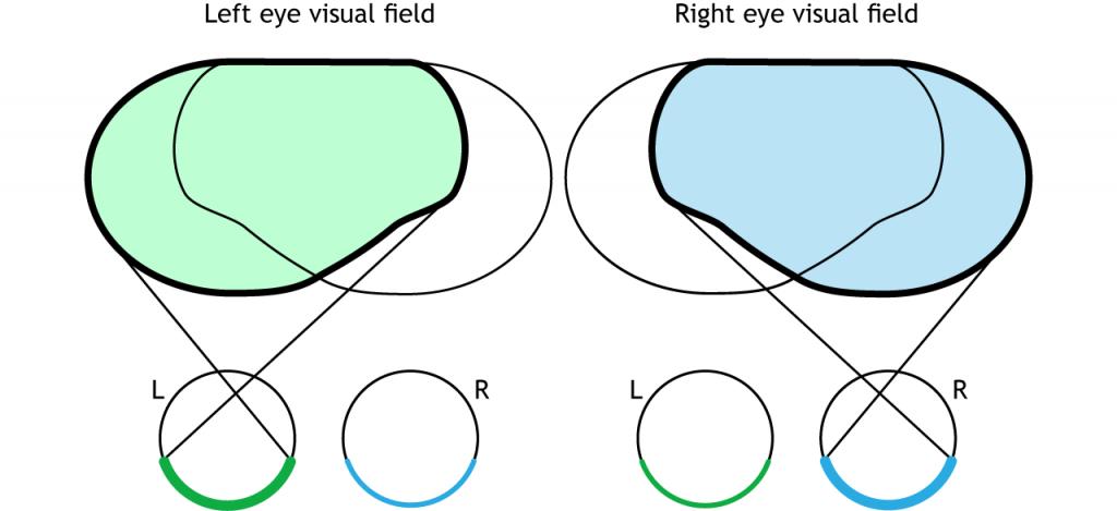 Illustration of single eye visual fields. Details in caption.