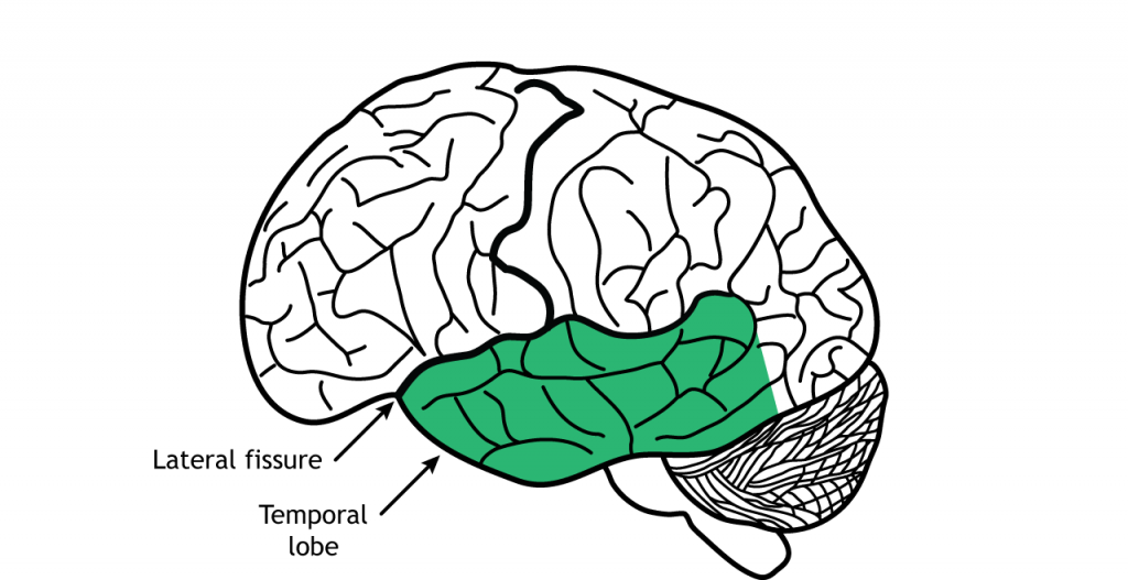 Illustration of the brain showing the temporal lobe. Details in text.