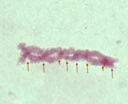 One pair of Two chromsome pairs that are overlapping in several areas (looks like braided yarn). Eight arrows are pointing to spots in the line of chromosomes to places where the red is darker than the rest of the chromosomes.