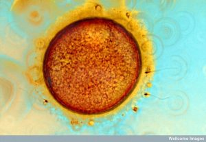 Large orange circle surrounded by a thick dark membrane and that is surrounded by yellow fibers and sperm cells.